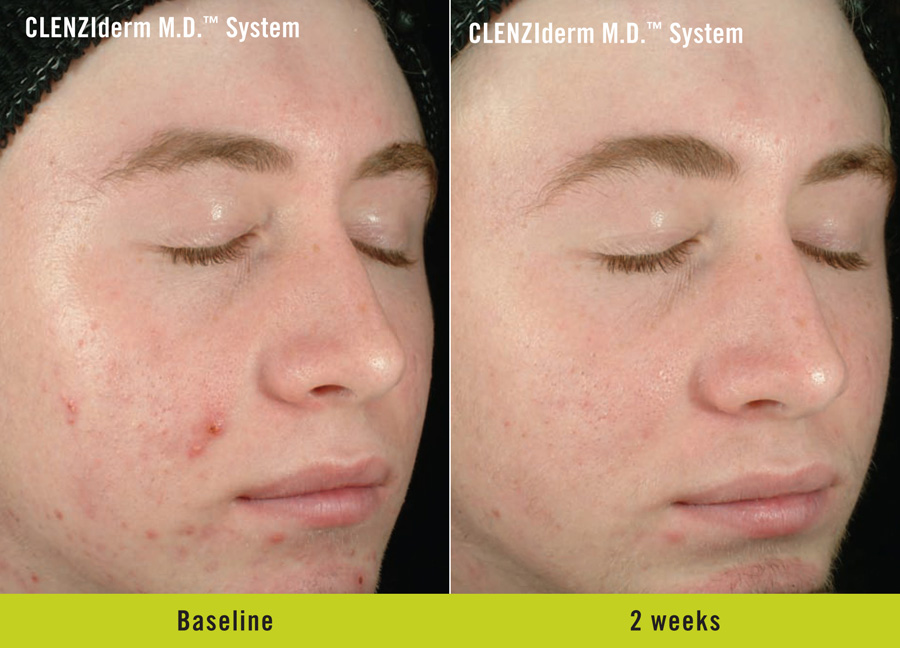 Facial peel acne